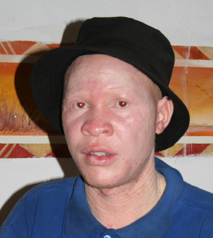 Zambia, Moscow, HHI, HHZ, Health Help International Zambia, albino, discrimination, medical, clinical officer, career, disability